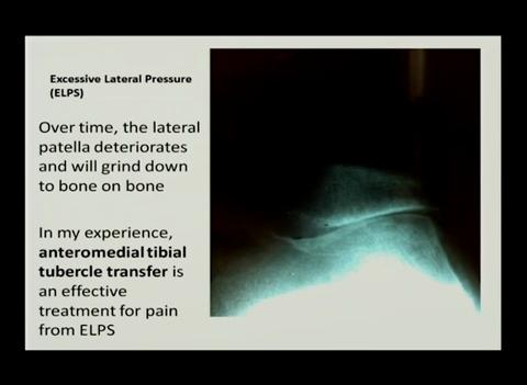 Most anterior knee pain has a specific source, identifiable by careful examination
