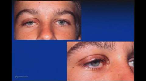VIDEO: Management options for ptosis