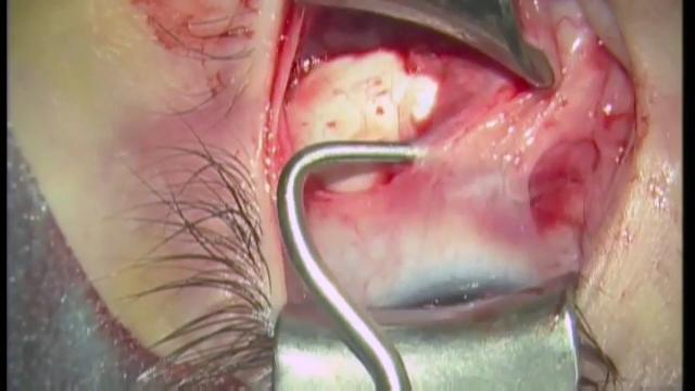 VIDEO — Inferior oblique fadenoperation: A new weakening technique