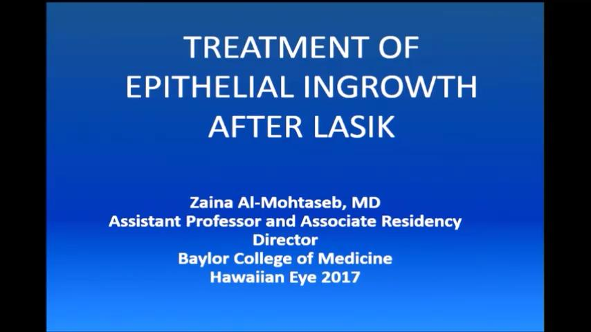 VIDEO: Treatment of epithelial ingrowth after LASIK