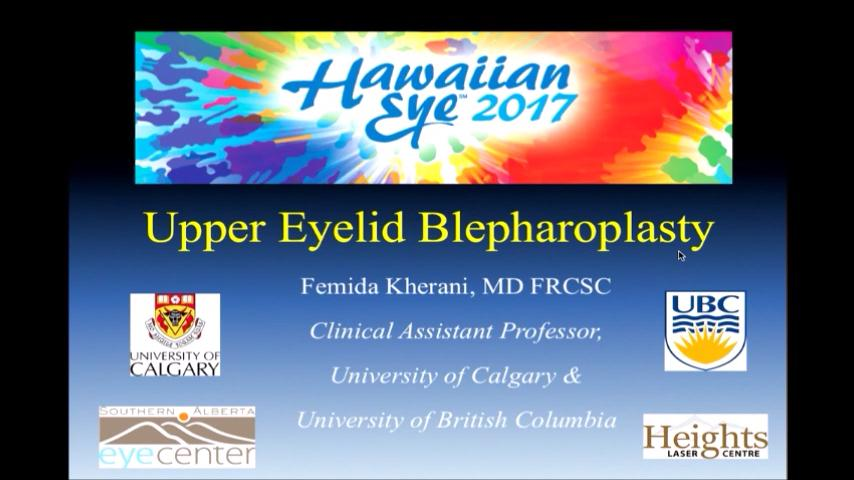 VIDEO: Upper eyelid blepharoplasty