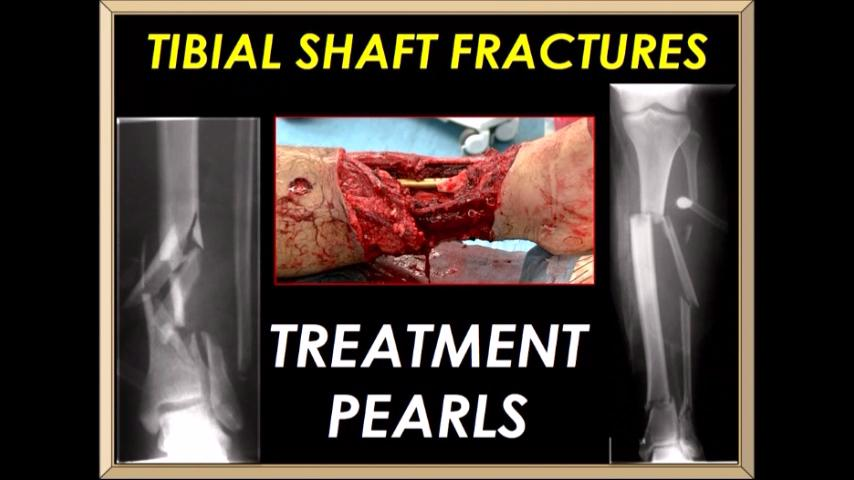 VIDEO: Presenter discusses treatment pearls for tibial shaft fractures