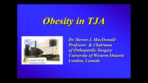 VIDEO: MacDonald discusses the link between obesity, need for TJA