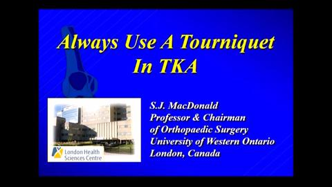 VIDEO: MacDonald discusses the use of tourniquets in total knee arthroplasty