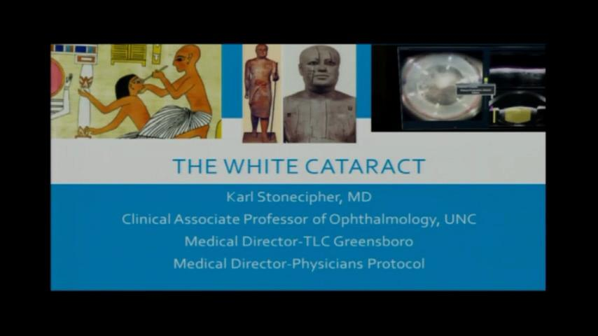 VIDEO: White cataract with FS laser
