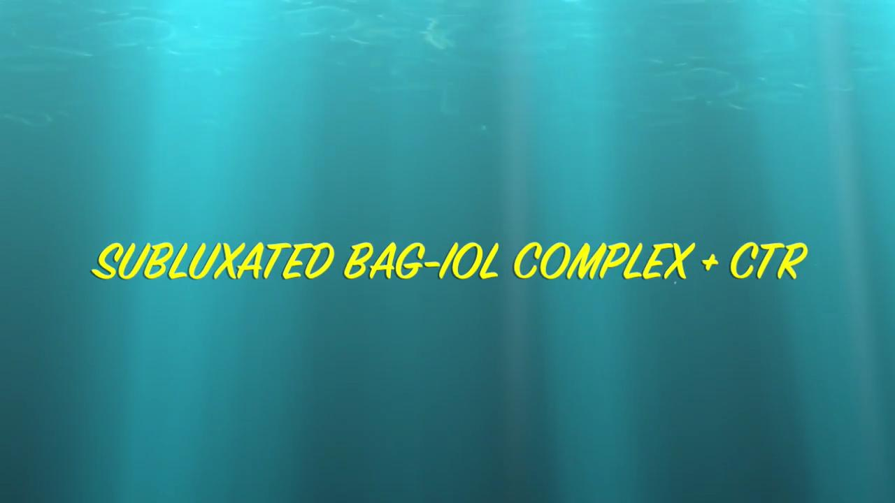 BLOG: Subluxated bag-IOL complex with capsular tension ring