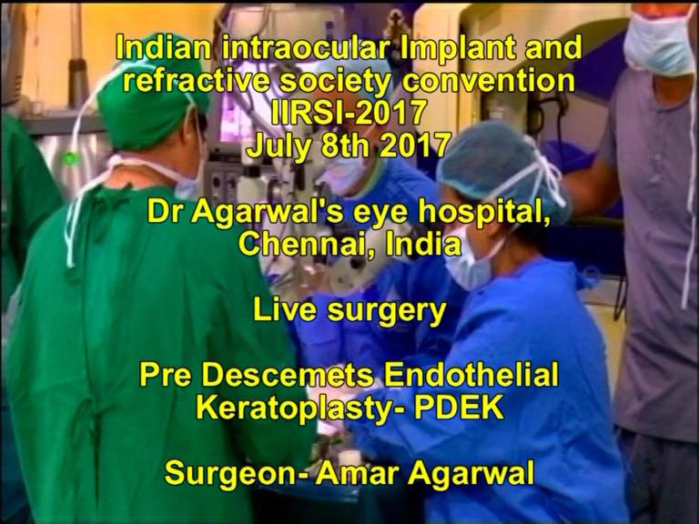 VIDEO: Amar Agarwal demonstrates PDEK live