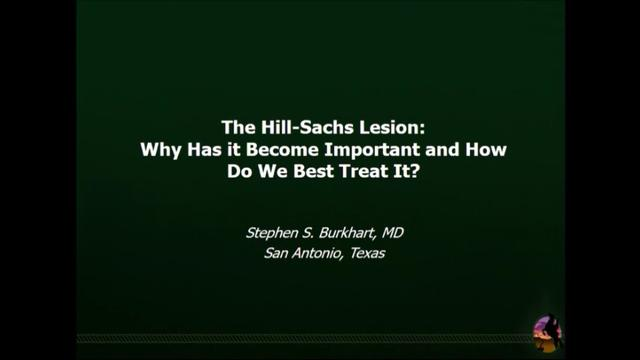 VIDEO: Presenter speaks to treatment options for Hill-Sachs lesions