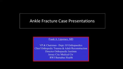 VIDEO: Presenter discusses treatments for ankle fractures