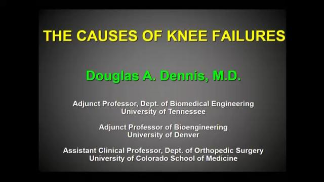 VIDEO: Dennis discusses the causes of knee failures