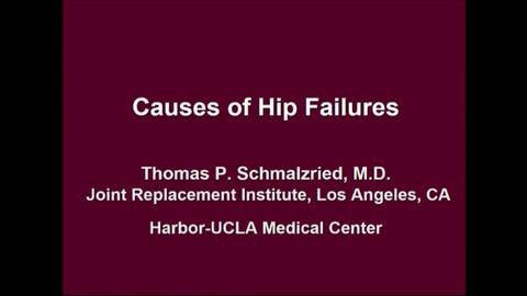 VIDEO: Presenter discusses the causes of hip failures