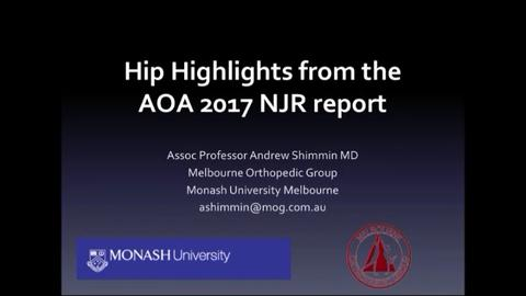 VIDEO: Presenter discusses hip highlights from Australian joint replacement registry