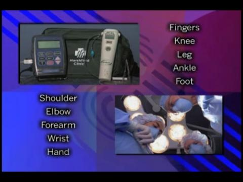 Explaining the use of a nerve block catheter and infusion pump