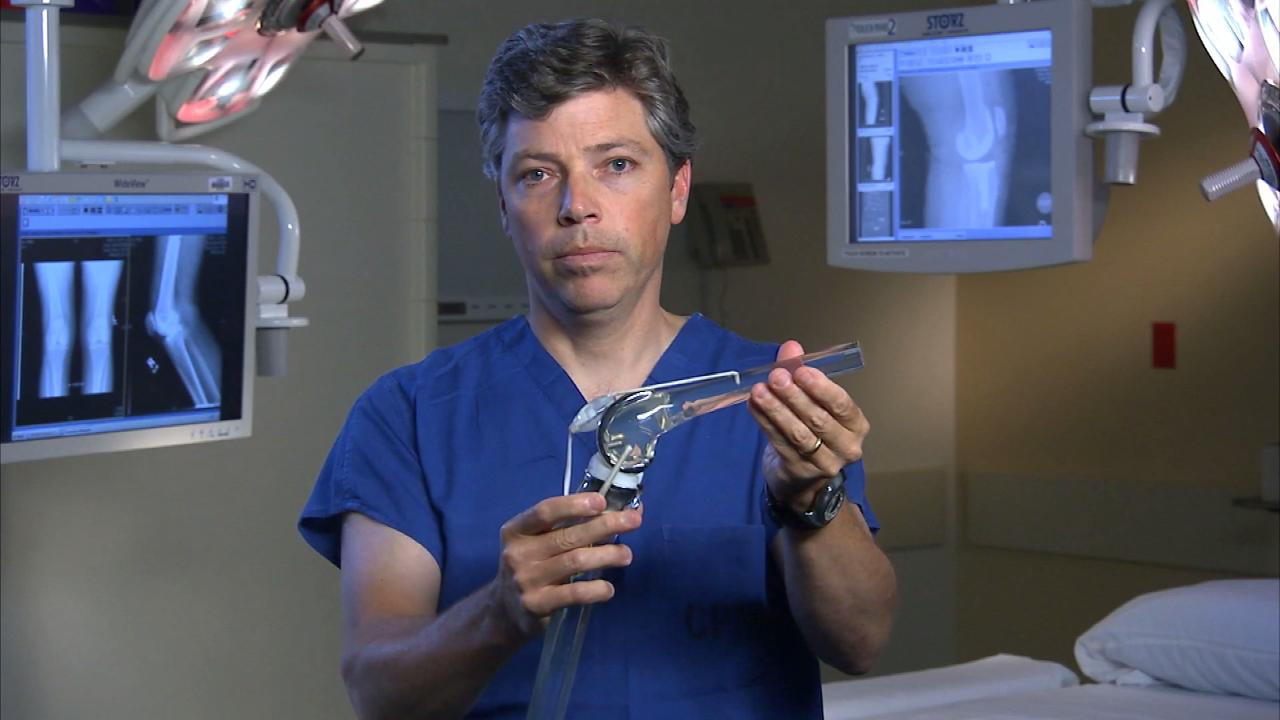 CPMC surgeon, Dr Callander explains new options for knee replacement surgery.