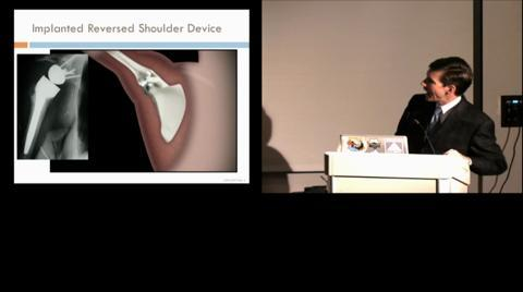 Understanding Chronic Shoulder Pain explained by Dr James Kelly,  CPMC Orthopedic Department