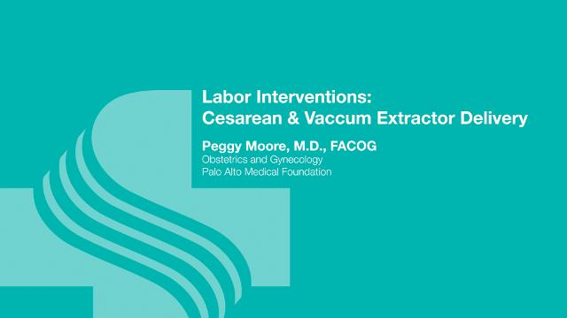 Peggy Moore, M.D., explains the need for a cesarean section and also when a vacuum assisted delivery may be called for.