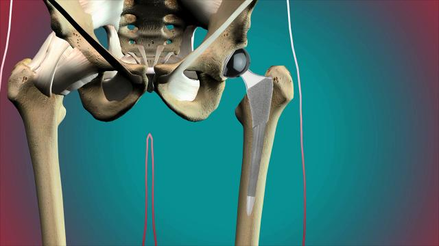 Christopher Cox, M.D., the Medical Director of and an orthopedic surgeon with Sutter Health CPMC's Total Joint Replacement Center, talks about how to get ready for traditional hip joint replacement surgery.
