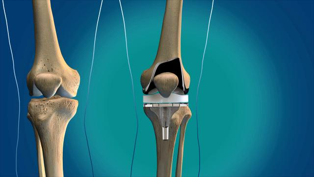 Peter Callander, M.D., an orthopedic surgeon with Sutter Health CPMC's Total Joint Replacement Center, talks about how to get ready for traditional knee joint replacement surgery.