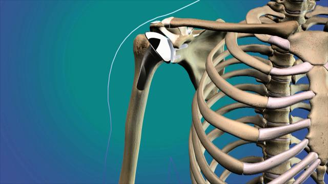 Mark Schrumpf, M.D., an orthopedic surgeon with Sutter Health CPMC's Total Joint Replacement Center, talks about how to get ready for shoulder joint replacement surgery.